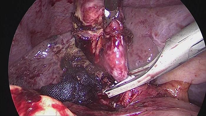 腹腔鏡下胆のう摘出の写真