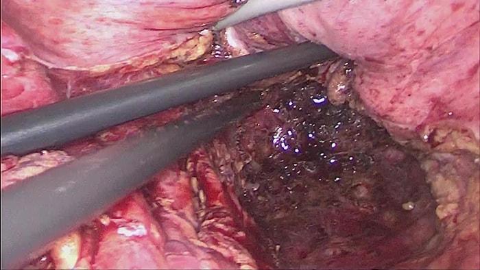 直腸癌に対する腹腔鏡補助下腹会陰式直腸切断術の写真2