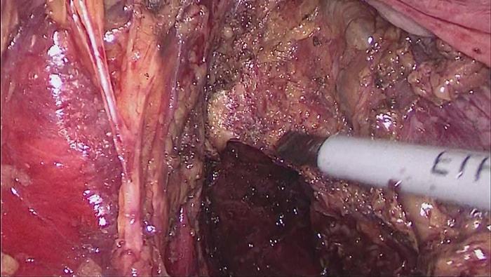 直腸癌に対する腹腔鏡補助下腹会陰式直腸切断術の写真
