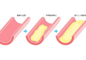 様々な病気を引き起こす動脈硬化